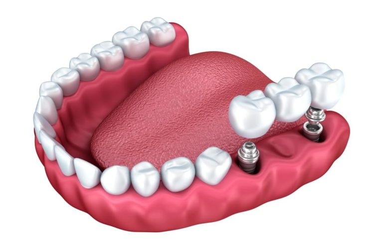 Dental Implants in Lees Summit
