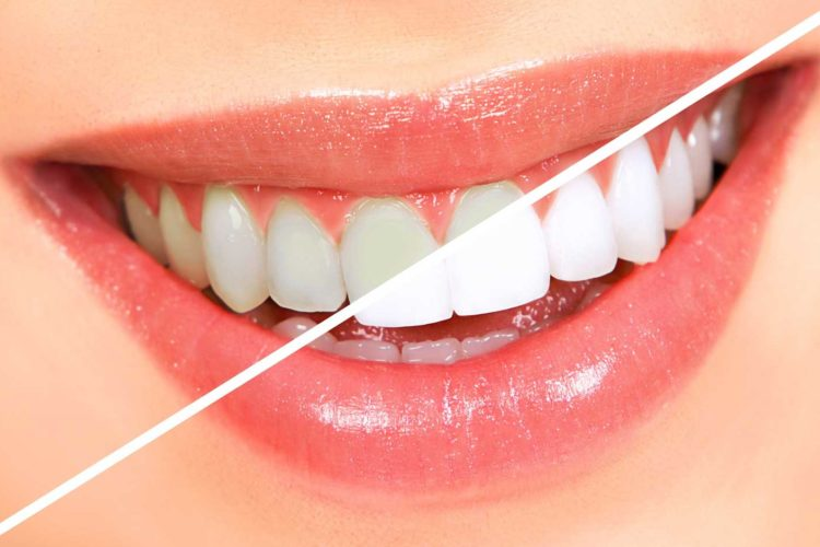 Teeth Whitening in Lees Summit
